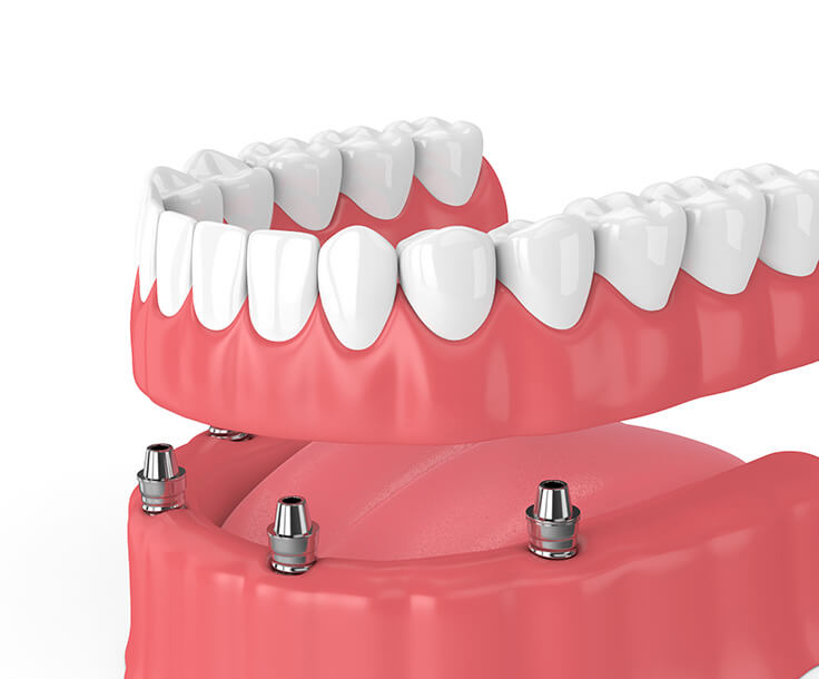 illustration of implant-supported dentures